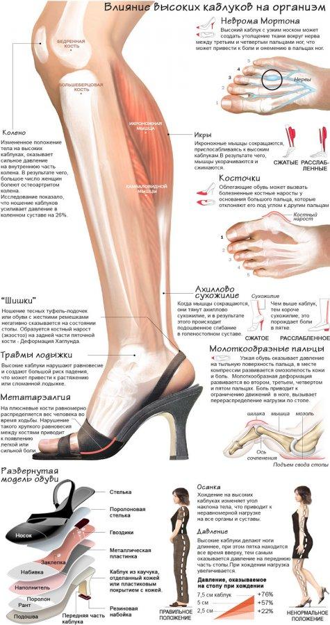 Туфли на высоких каблуках и наше здоровье
