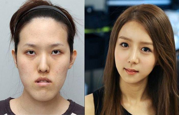 Пластическая хирургия фото до и после