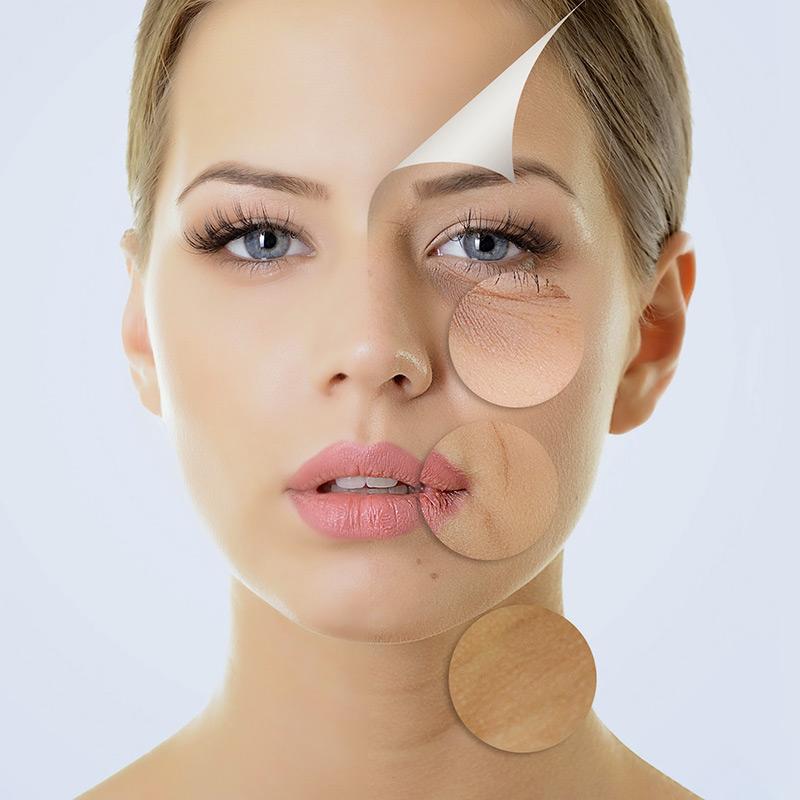Простые правила сохранения упругости кожи