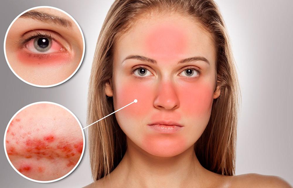 Купероз кожи на лице