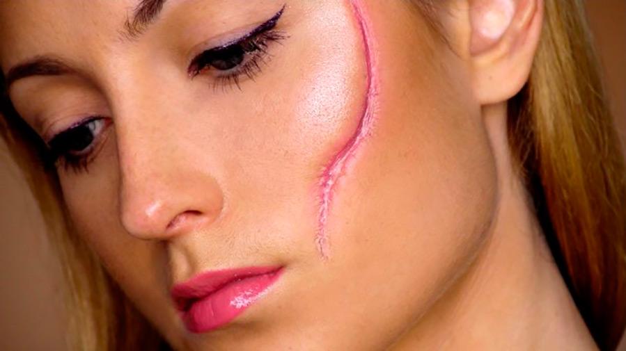 Шрамы на лице или теле